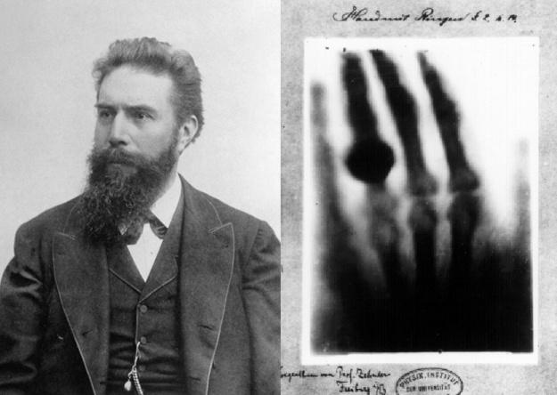 Wilhelm Conrad Roentgen First X-ray