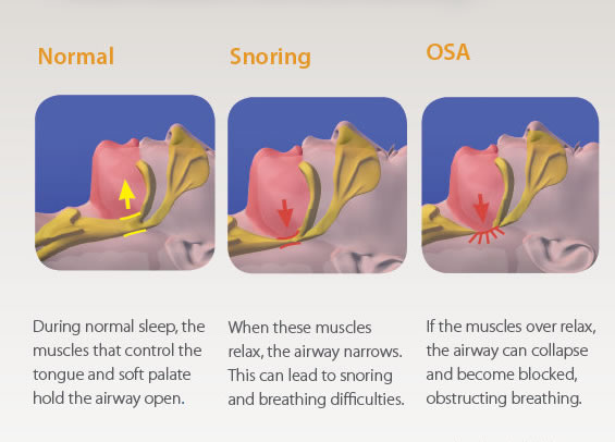 Causes of Snoring - Normal & Snoring & OSA