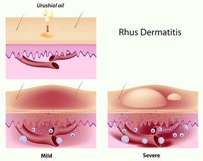 Rhus Dermatits caused by Poison Ivy